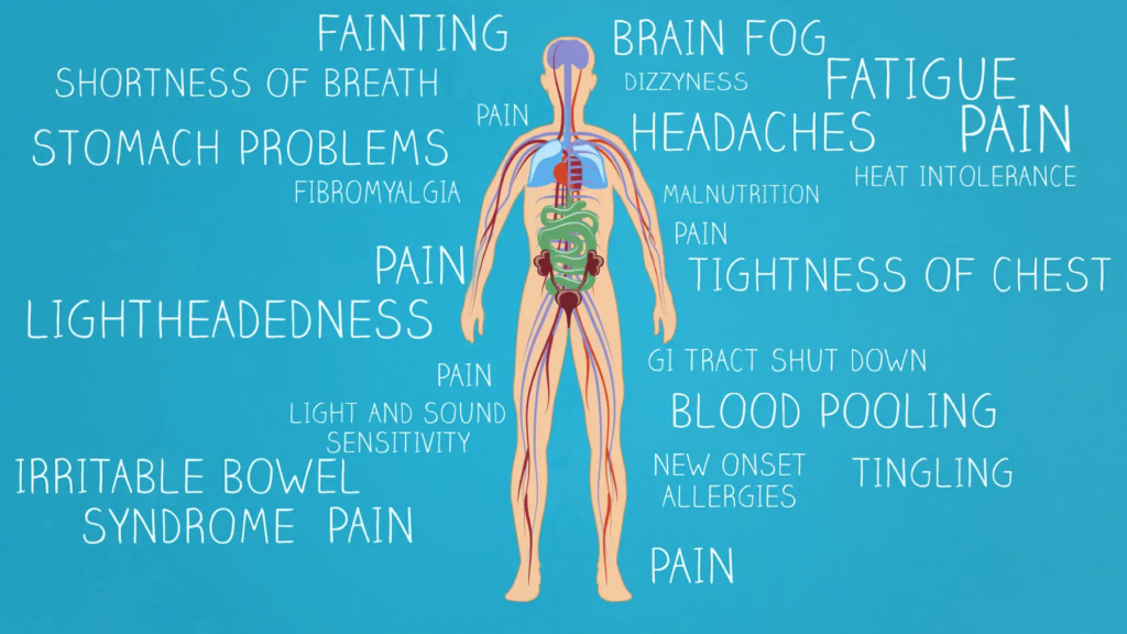 COVID induced POTS and Nervous system disorders